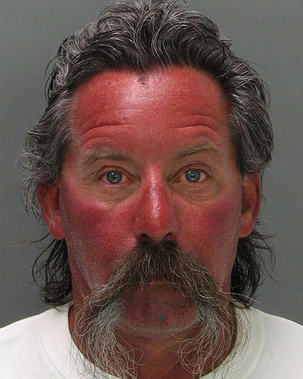 01-Amazing-Mugshots-of-Normal-People-Sunburn.jpg